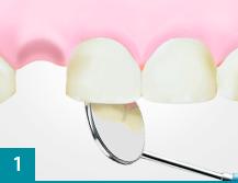 Зубные имплантаты премиум класса