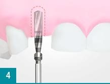 Процедура имплантации зубов без боли
