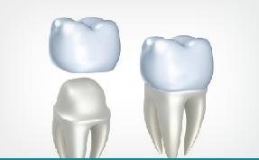 Единичные коронки на зубы из металлокерамики